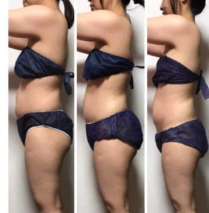 骨盤矯正と幹細胞痩身エステでお腹痩せするダイエット専門店